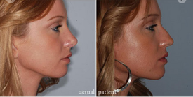 Cosmetic Facial Work on the Rise for Chattanooga's Face Doctor